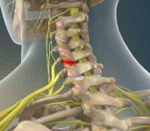 """""""Neck Facet"""" Joint Pain"""